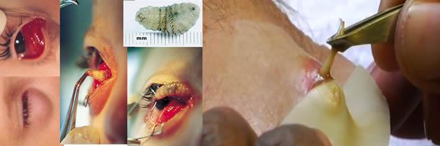 La mosca asesina