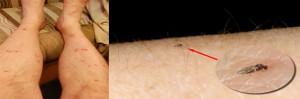Las picaduras de jejenes pueden provocar alergias