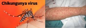 El virus chikungunya es creciente en EEUU. La mejor manera de prevenir el contagio del virus