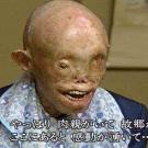 japones-radiacion2