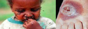 Estudian a la mosca tsetsé con nueva técnica de infrarrojo, esto podría permitir controlar en un futuro el desarrollo