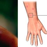 Descubren porque el mosquito mas letal prefiere la sangre humana