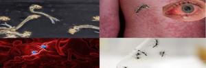 Para Usted cual es la criatura mas peligrosa de la Tierra?, el mosquito. Filariasis