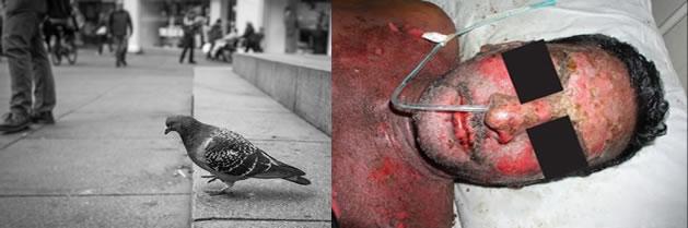 Las palomas pueden propagar un hongo mortal