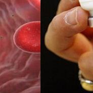 La vacuna contra el dengue, es peor que la enfermedad